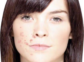 Faire disparaître toutes ses tâches d'acné juste avec du maquillage…..