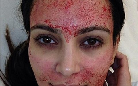 Vous connaissiez la technique du Vampire Facelift ?? (vidéo de Kim Kardashian + avant/après inside)