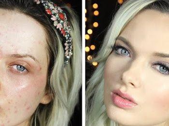 La blogueuse beauté EM Ford – atteinte d'acné sévère – répond avec émotion à ses haters