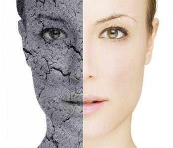 Les dégâts de l'humidité et d'un air trop sec sur votre santé et votre beauté