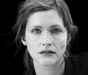 La French Touch en médecine esthétique ? (photos avant-après)
