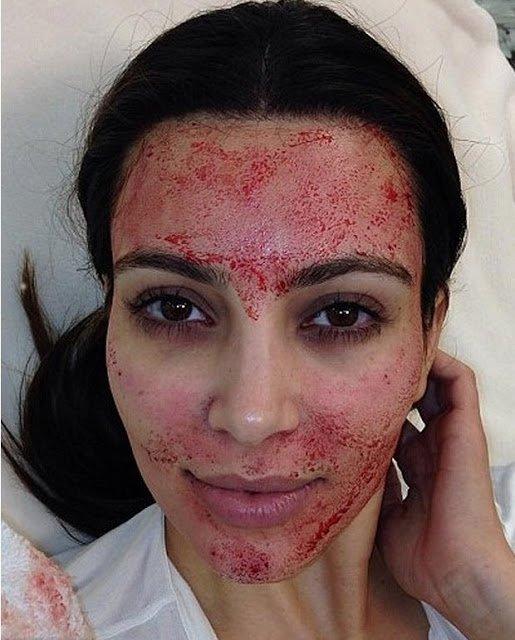 Kim-Kardashian-fait-un-Face-lift-Vampire-3