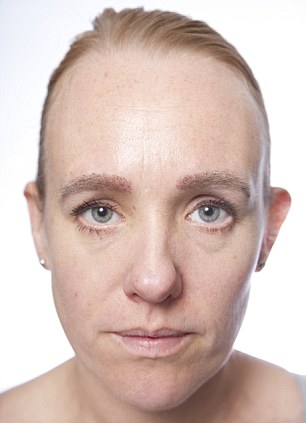 Anna Pursglove (After Surgery Eyebrows)